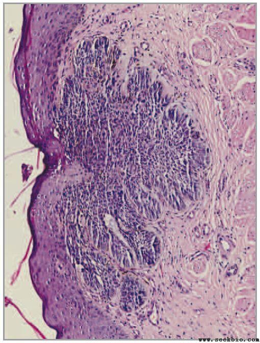 基底细胞癌