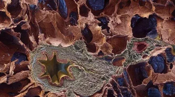 特发性肺纤维化