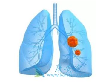 吉非替尼是力比泰治疗TKI肺癌患者最佳治疗搭档